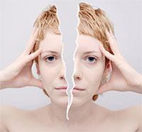 hormonal-migraine