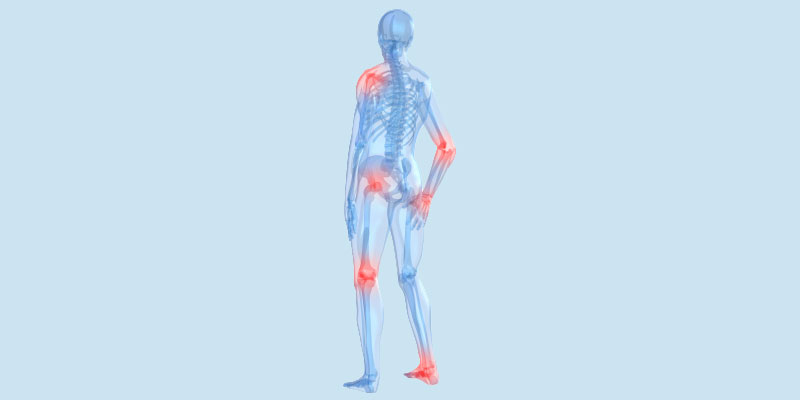 Osteoarthritis and Homeopathy: A Client Case